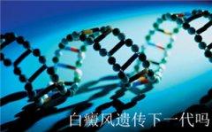 白癜风遗传给下一代的几率是多少呢