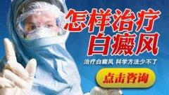 成都博润白癫疯医院:如何治疗白癜风呢